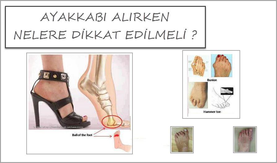 Ayakkabı Alırken Nelere Dikkat Etmek Gerekir?