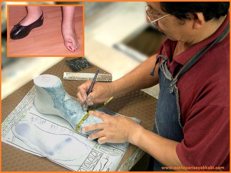 Ortopedik Ayakkabı Tasarımı ve Hazırlanışı