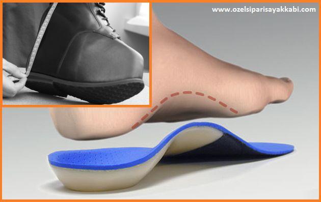 Ortopedik Ayakkabı Yaptırmak İçin Gerekenler