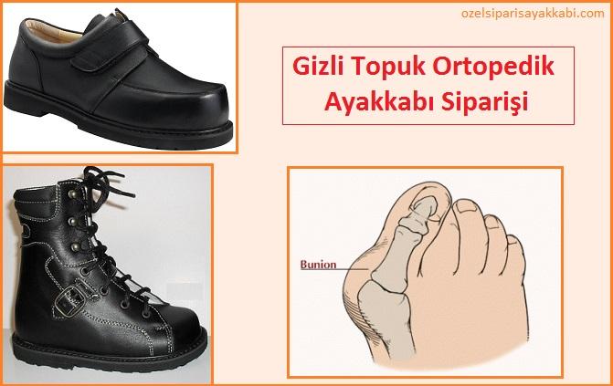 Gizli Topuk Ortopedik Ayakkabı Siparişi