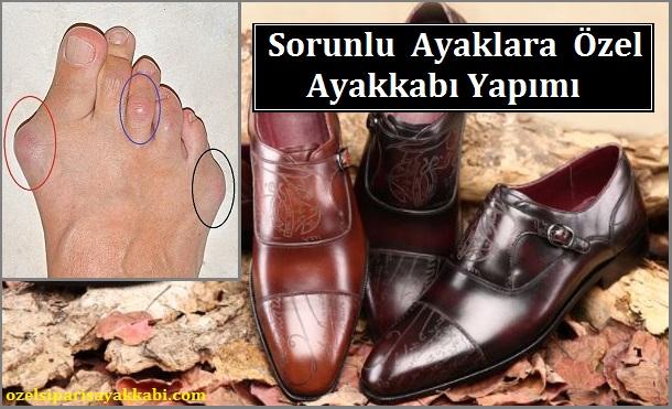 Sorunlu Ayaklara Özel Ayakkabı Yapımı