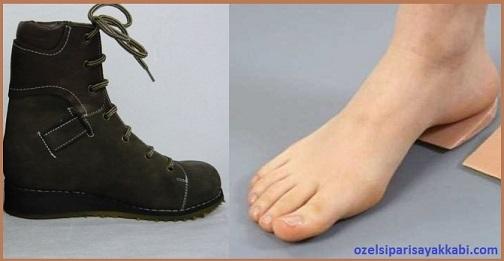 Ortopedik Ayakkabı Yapımı Büyük Numara