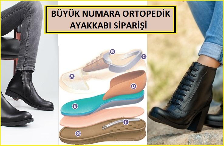 Büyük Ayaklar İçin Ortopedik Ayakkabı Yapımı